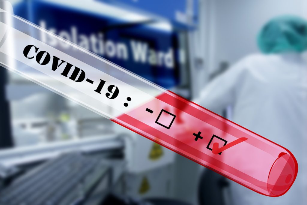 Test rapidi in farmacia, effettuati oltre mezzo milione, il 3% risultato positivo